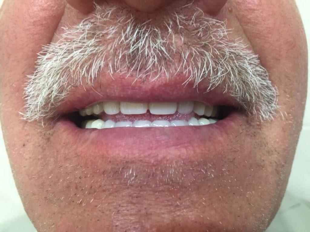 протезирование зубов цена