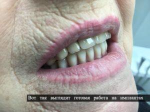 заказать зубной протез киев