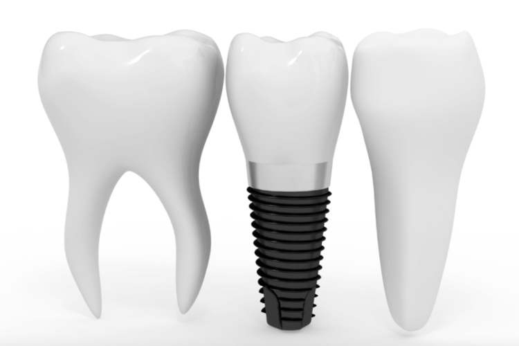 имплантация зуба киев