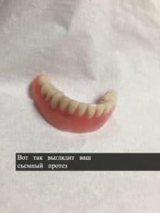 зубной протез киев