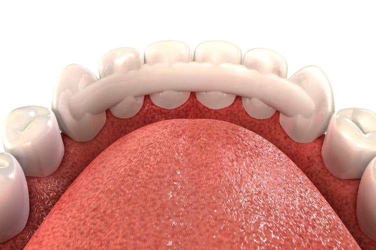 Шинирование зуба