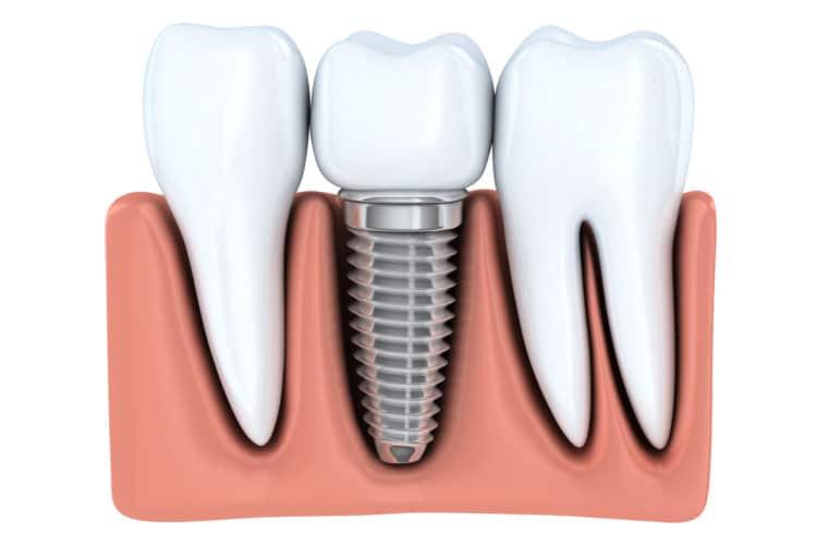 Имплантаты зубов H-dent