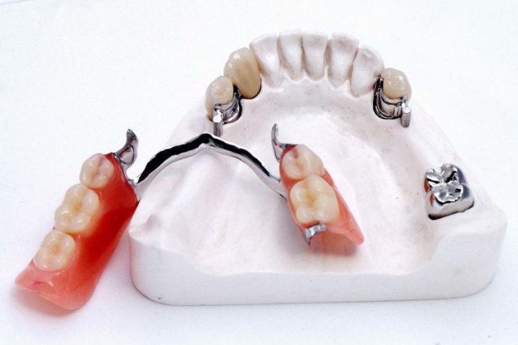 стоматология Киев, стоматология в Киеве, протезирование зубов, протезирование зубов Киев, имплант зуба цена, имплант Киев, имплантация в Киеве