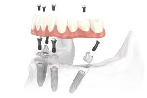 все на четырех зуба