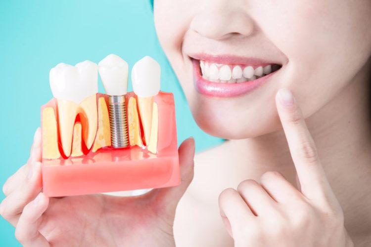 Удаление зуба Киев, удалить зуб Киев, удалить зуб в Киеве, стоматология Киев, стоматология в Киеве, имплантация зубов Киев, имплантация зубов в Киеве