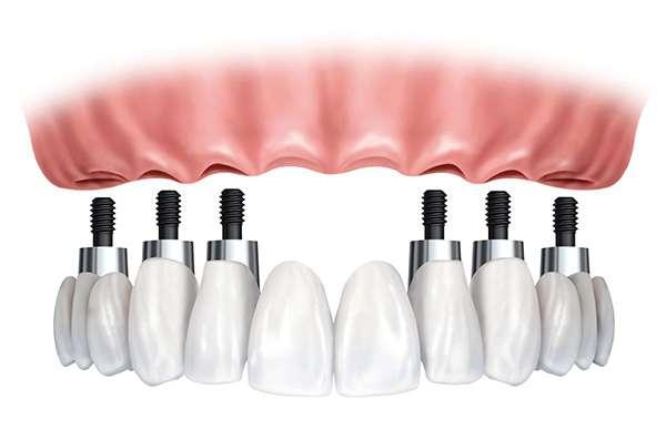 Протезирование зубов Киев, протезирование зуба Киев, Имплантация зубов Киев, имплант зуба цена, Имплант зуба цена