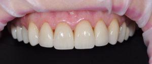 циркониевые коронки на зубах