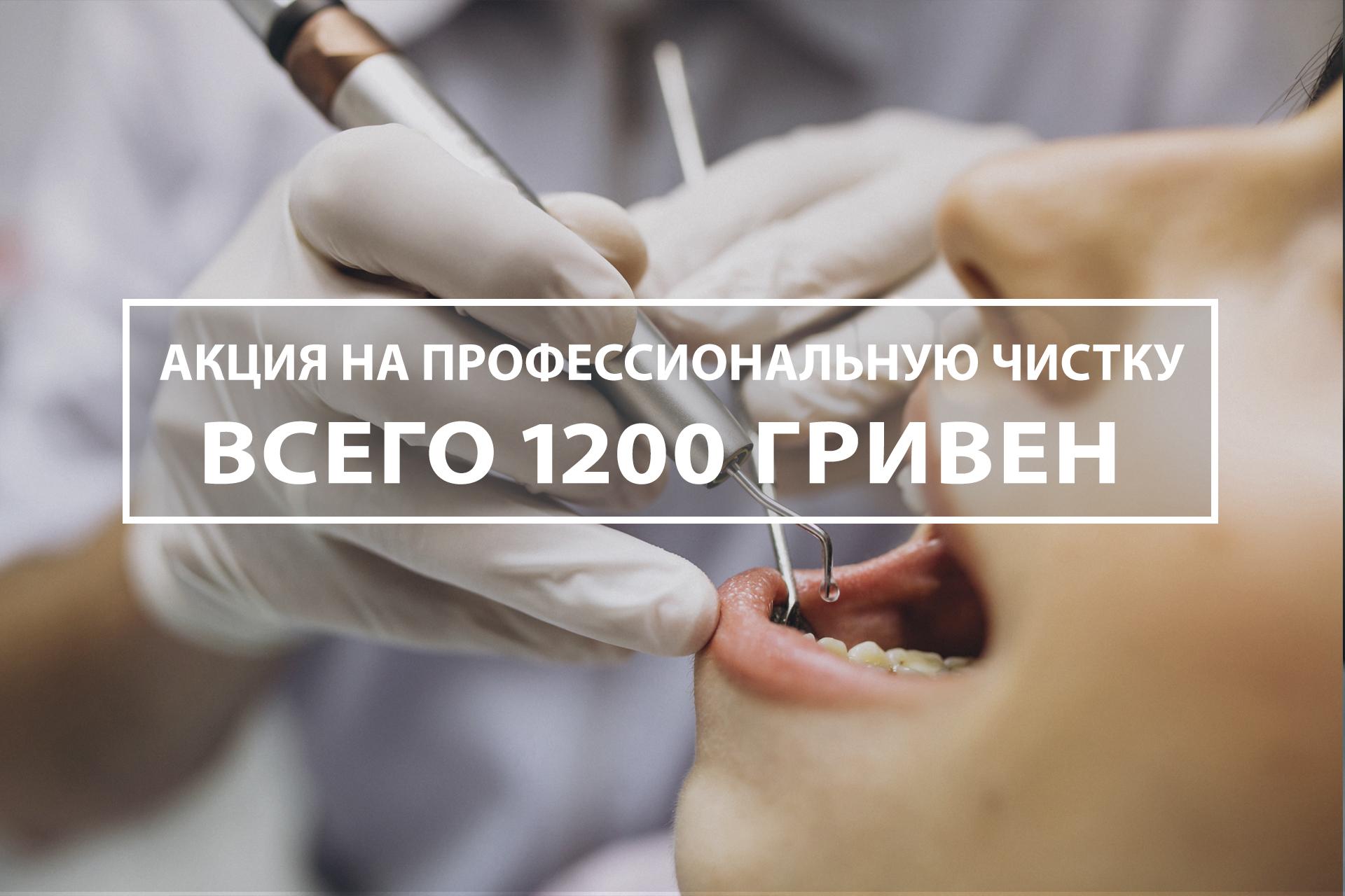 чистка зубов киев акция